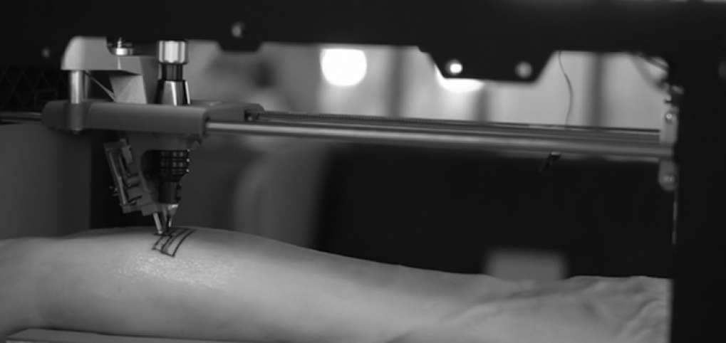 The 3D Printer That Will Replace Your Tattoo Artist